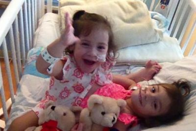 conjoined-twins-erika-and-eva-before-their-separation