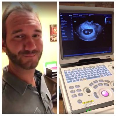 Limbless evangelist Nick Vujicic announces wife is pregnant with twins